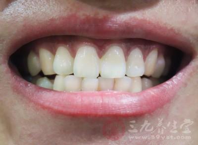 牙齿外层坚硬的牙釉质(珐琅质)被破坏