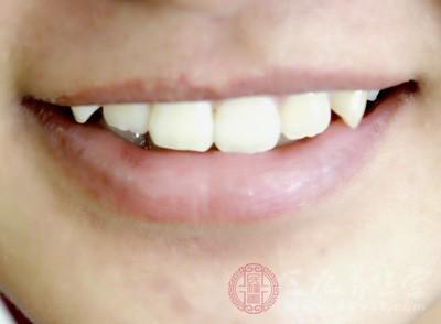 牙齿美白吃什么 原来美白牙齿这么简单