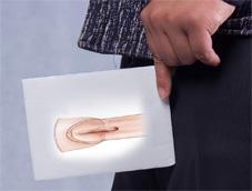 泌尿系統中的疾病尿道下裂