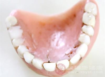 牙齿发黄与细菌、饮食有关