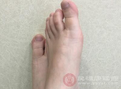 在腳氣患者當中進行統計,我們可以發現的腳氣的更多是一些青年男性