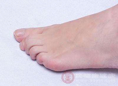 出汗较多、足部潮湿,利于霉菌生长繁殖而起