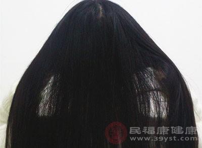 脱发的原因 推荐4种治疗脱发的食谱