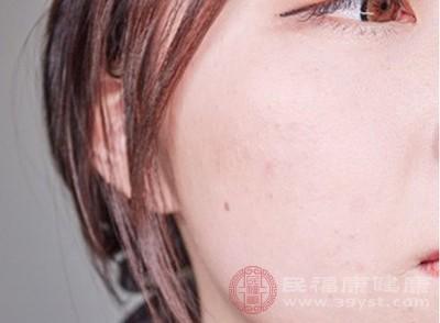 皮膚容易早衰,在停止使用激素類藥膏后,皮膚容易快速松弛