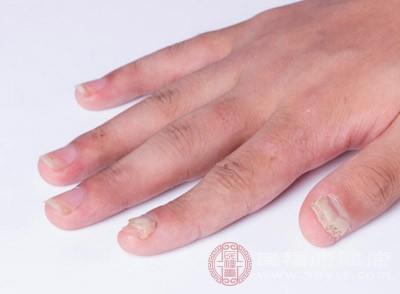 凤仙花治疗灰指甲
