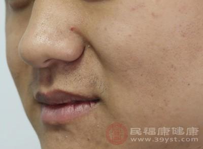做好皮肤清洁正确清洁皮肤。由于普通香皂会破坏皮肤表层,刺激皮肤,故好用专门的洗面奶或凝胶洗脸,以对皮肤起到很好的清洁作用