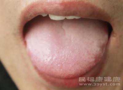 鹅口疮的症状 4大表现是鹅口疮的预警