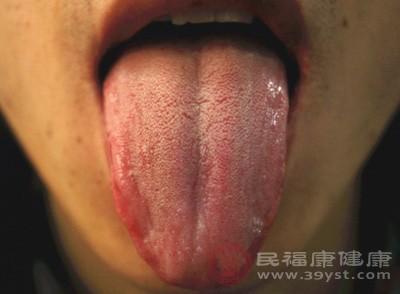 舌癌的早期症状 这些情况当心是舌癌