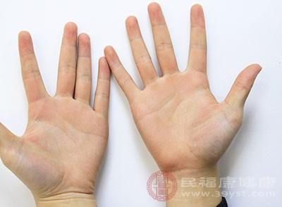手为什么会脱皮 原来是这些原因导致