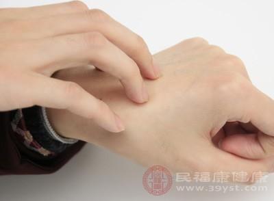 糖尿病皮肤瘙痒怎么办 7种方法缓解皮肤瘙痒