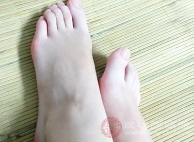 脚痒怎么办特别是在晚上 脚痒这样预防好(2)