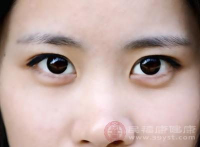 黑眼圈怎么去除 10个妙招去黑眼圈见效快