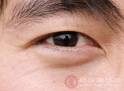 怎样除眼袋 关于眼袋的5大误区