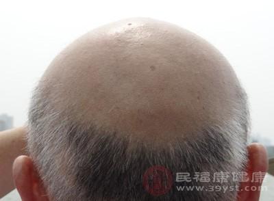 男人脱发是怎么回事 小心是这个原因导致