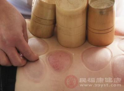 关于拔罐后身体留下各种各样的印子分别是代表什么意思