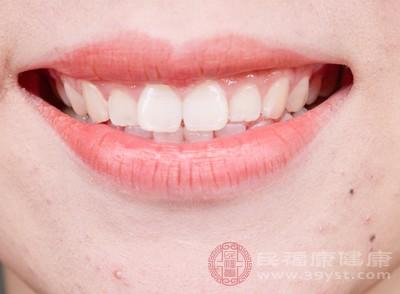 洗牙好不好 洗牙后需要注意这些