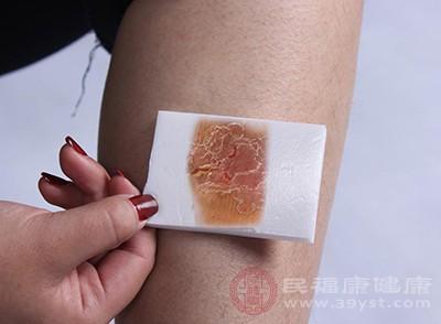 湿疹的症状是什么 这样做治疗湿疹
