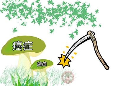 中国每年因胃癌死亡49.8万人
