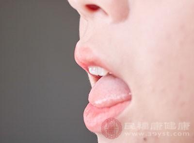 拔牙后的注意事项 拔牙后饮食要注意