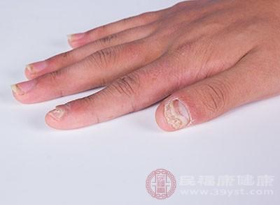 引起灰指甲的原因 灰指甲可以这样治疗