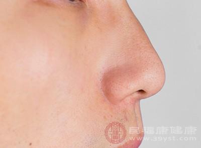 假体硅胶隆鼻需注意什么