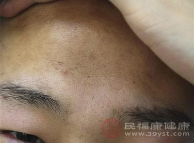 很多人会在额头的部位长痘痘