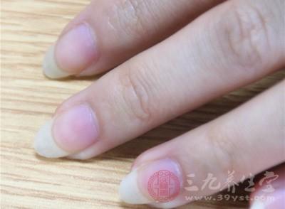 长指甲的危害 男子62年未剪指甲结果竟变这样