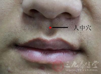 """刺激鼻唇之间的""""人中"""",有助于患者的苏醒"""
