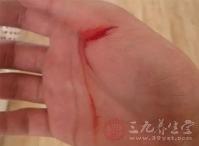对伤口出血较多者应进行加压包扎止血