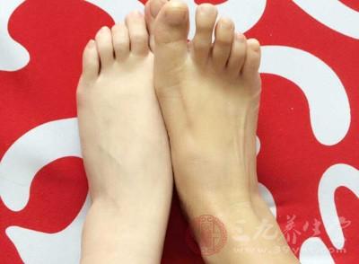 脚上长水泡 脚上长的小水泡可以弄破吗