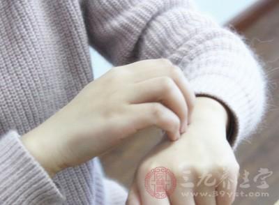 过敏性荨麻疹怎么办 荨麻疹的治疗