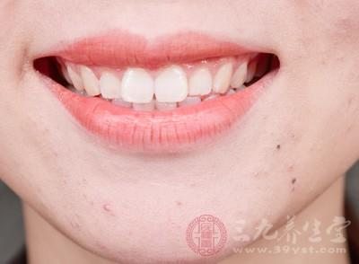 怎样快速美白牙齿 美白牙齿牢记这些妙招