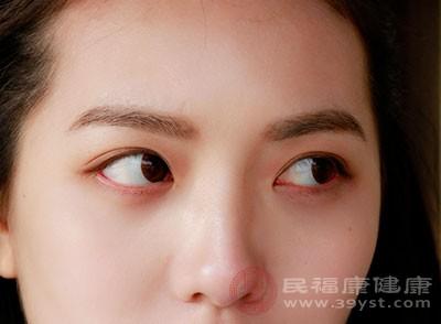眼袋的形成 坚持这样做能去除眼袋