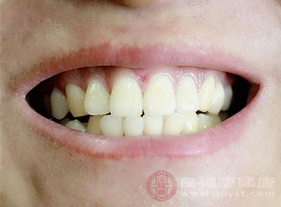 换一个牙要多少钱