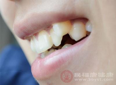 牙齿矫症的方法有很多