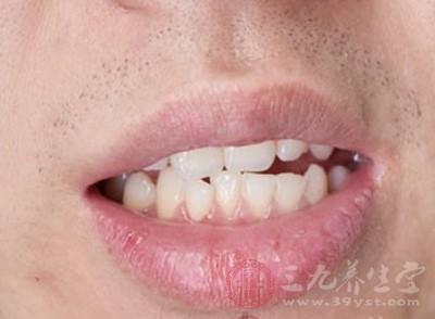 牙齿矫正多少钱 牙齿矫正需经历哪些过程