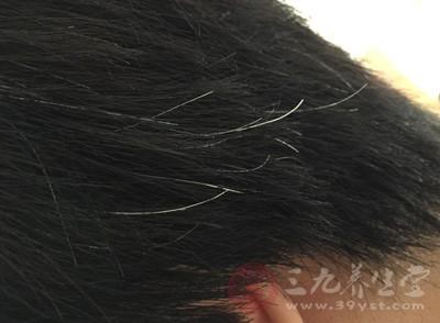 白发怎么变黑发 多年白发神奇变黑竟因它