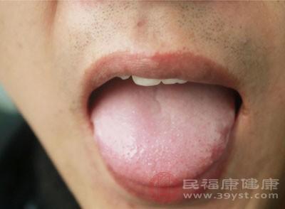 舌苔开裂是怎样回事