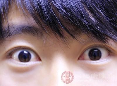 双眼皮术后饮食要注重不要吃一些辛辣刺激的食物