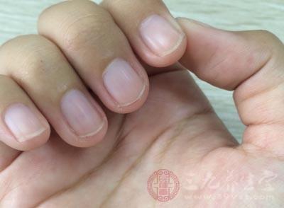 指甲有凹陷说明肠胃问题不好