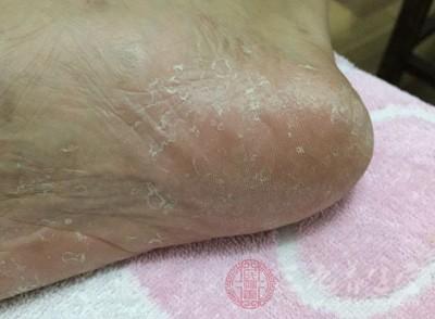 脚痒脱皮起水泡用什么药最好 脚气如何治疗(2