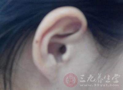 耳鸣我们可不能大意的,因为如果不能及时的治疗可能会让我们的听力受损