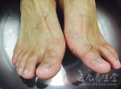 脚指甲变厚变黄是怎么回事 脚指甲变厚怎么办