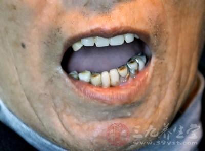 牙周炎怎么治疗 如何预防牙周炎