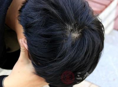 甲状腺功能紊乱的第一症状是脱发