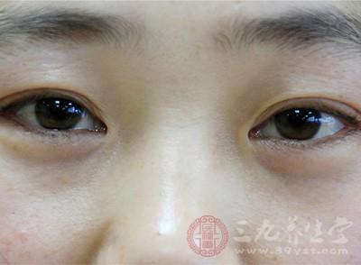 去除眼部小细纹_眼皮松弛怎么办 如何防止眼皮松弛