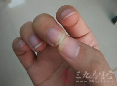 指甲长肉里不要拔 修好指甲也能治疗
