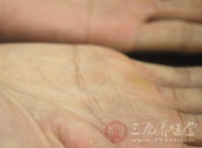 在大拇指至小拇指的根部之间的大小鱼际处的皮肤出现了片状充血