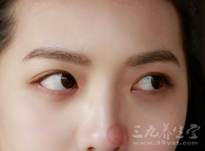 14岁少女看东西吃力 割掉多余眼皮开阔视野