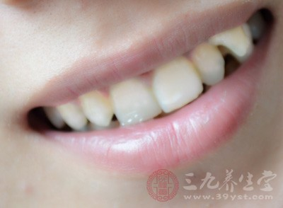 牙颈部楔状缺损